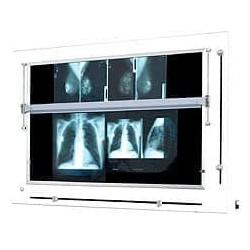 Mammoscope - Négatoscope pour mammographie à LED pour mammographie - 300 VA -...